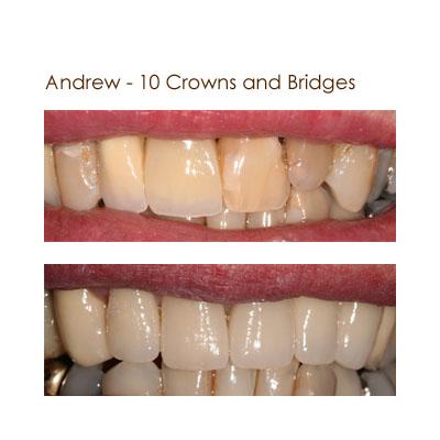 Andrew - 10 Crowns and Bridges