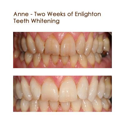 Anne -Two Weeks of Elignten Teeth Whitening