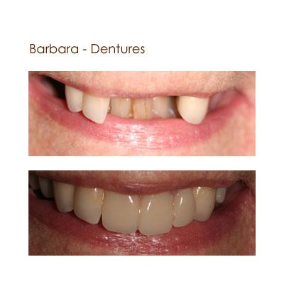 Barbera - Dentures