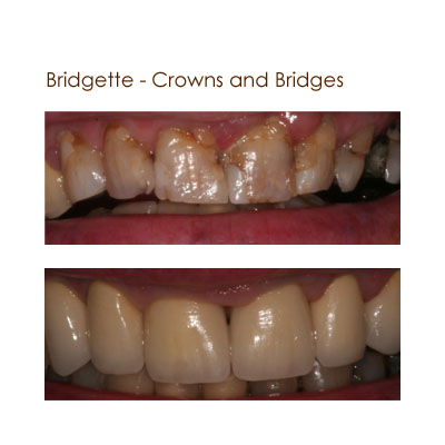 Bridgett - Crowns and Bridges