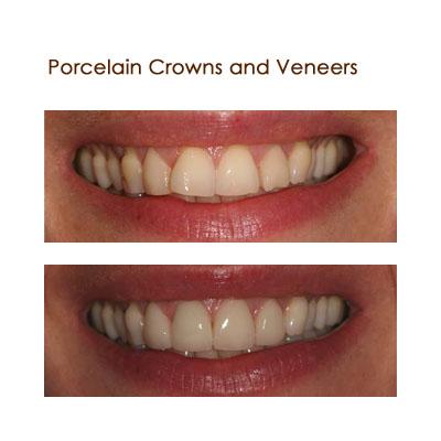 Porceleain Crowns and Veneers