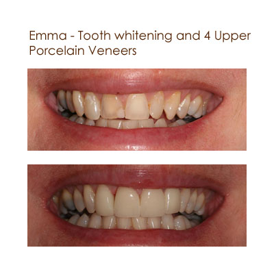 Emma - Tooth Whitening and and 4 Upper Porcelain Veneers