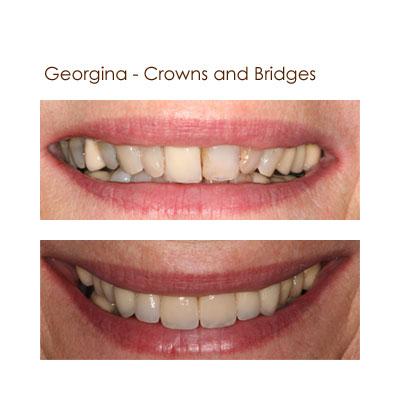 Georina - Crowns and Bridges