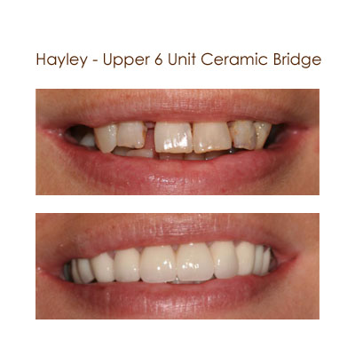 Hayley - Upper 6 Unit Ceramic Bridge