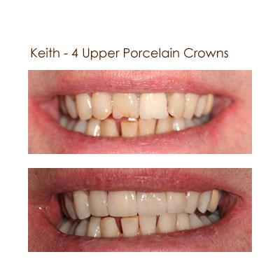 Keith - 4 Upper Porcelain Crowns