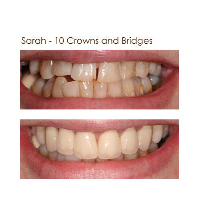 Sarah - 10 Crowns and Bridges