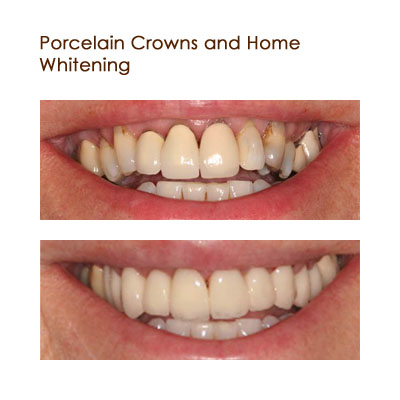 Porcelain Crowns and Home Whitening
