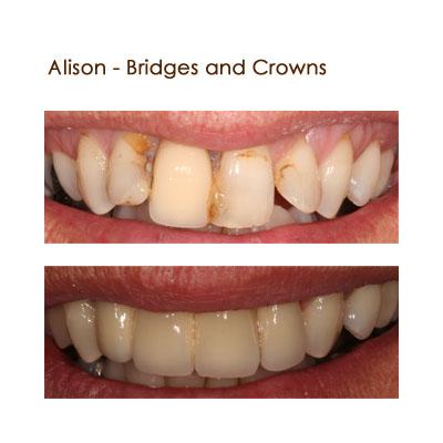 Alison - Bridges and Crowns